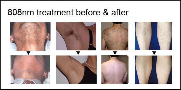 Best skin painless hair removal MSLDL05